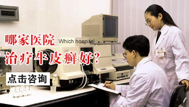 脓疱型牛皮癣有什么症状表现吗