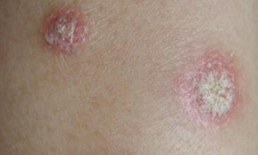 牛皮癣有哪些比较常见的病因